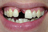 Oral implantology implant dentistry your child